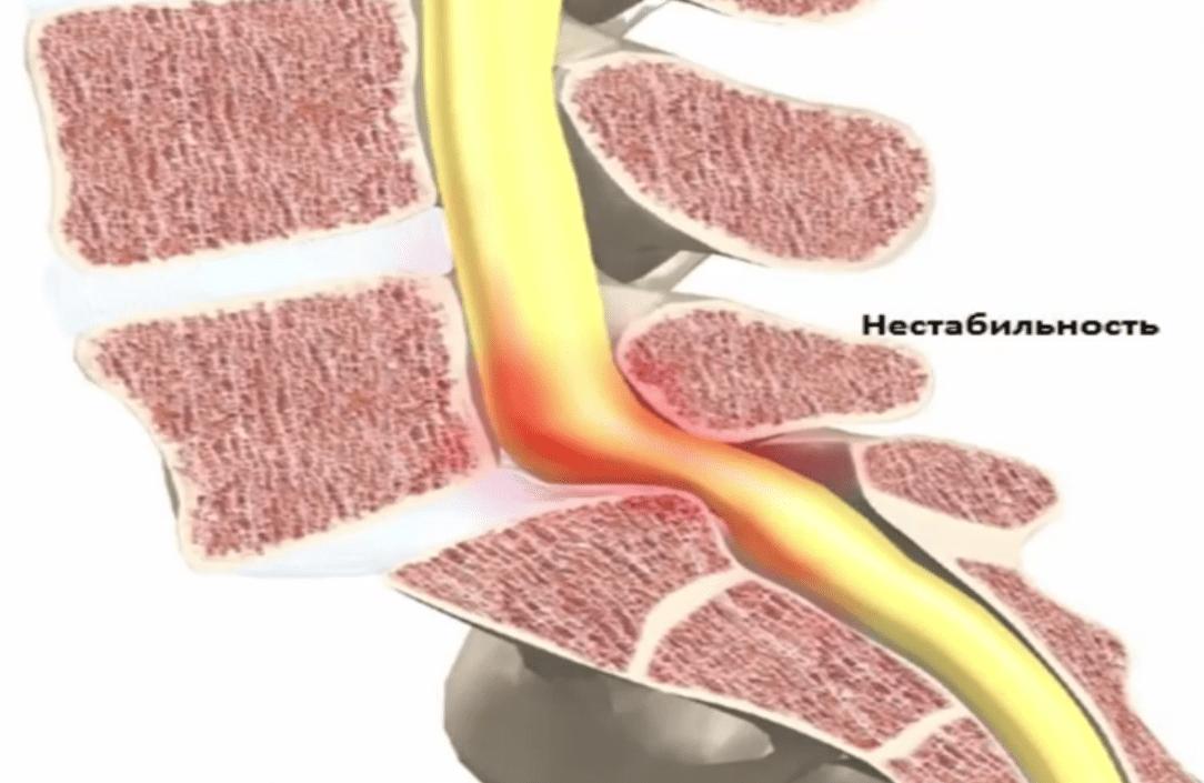 Go-Flex - оздоровительный комплекс для суставов